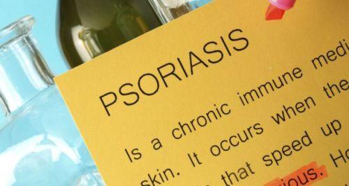 Psoriasis-500x266